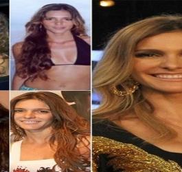 10 celebridades que ficaram irreconhecíveis depois da progressiva
