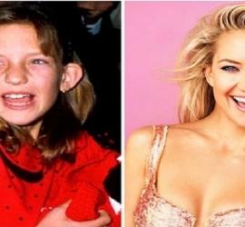 8 imagens que mostram como eram as celebridades quando estavam na escola