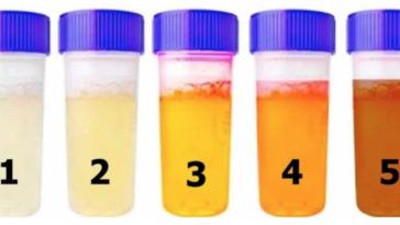 Sua urina fica dessa cor? Então você precisa saber disso com urgência